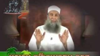 إضحك مع الشيخ الحويني (المجروحين)